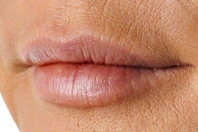 кисетные морщины над верхней губой коррекция в косметологии