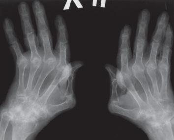 Ревматоидный артрит на рентгене