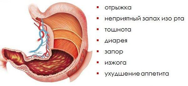 Гастрит желудка: симптомы и лечение у взрослых