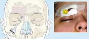 Операция при синусите – что нужно знать пациенту