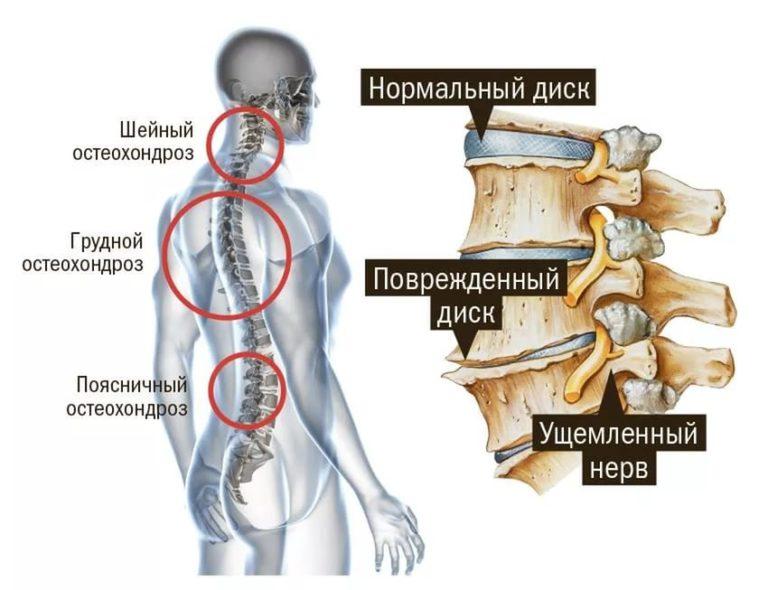 Рентген шейного отдела: что показывает диагностика