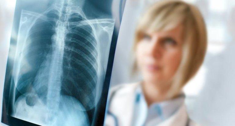 Рентгенография грудной клетки: показания к проведению диагностики