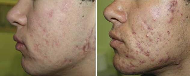 Как избавиться от угрей на лице: эффективные способы