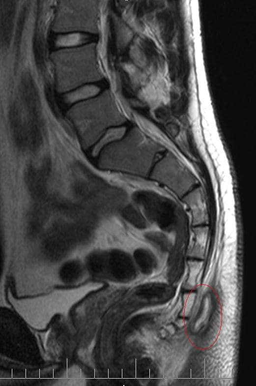 Диагностика копчика методом МРТ