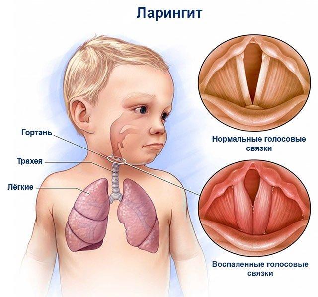 Рентген горла: какие заболевания может показать