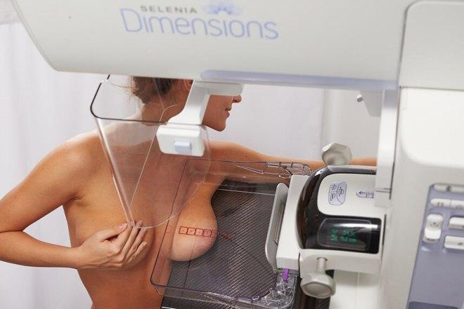 Рентген женской груди