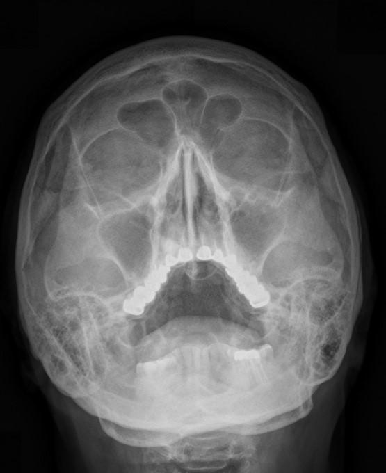 Для чего используют рентген пазух носа?