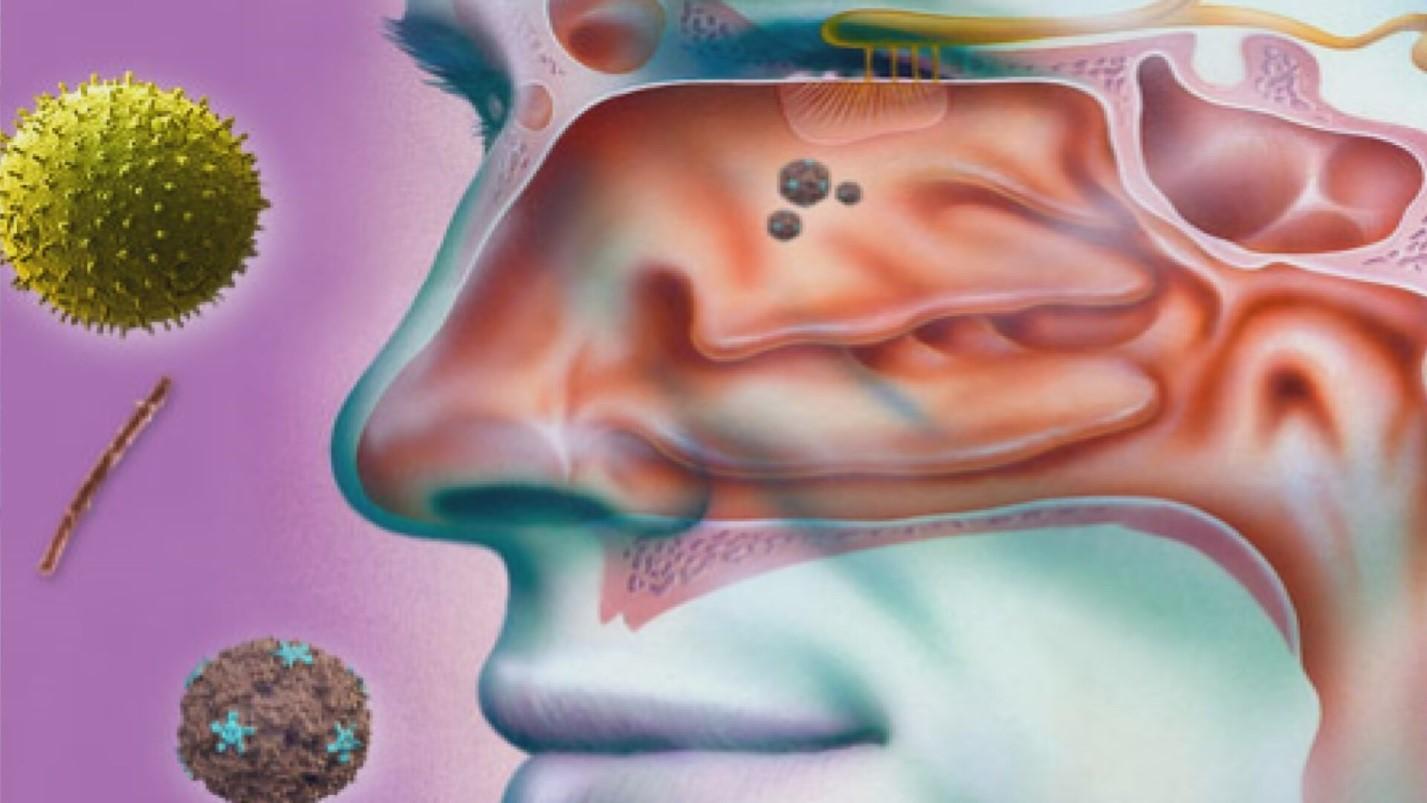 Основной путь попадания инфекции в пазуху через полость носа
