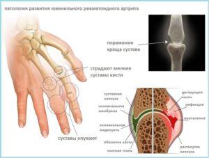 МР-диагностика руки: показания, альтернативы