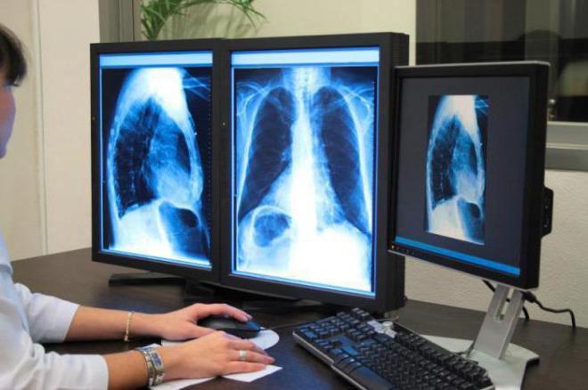 Результат рентгена легких