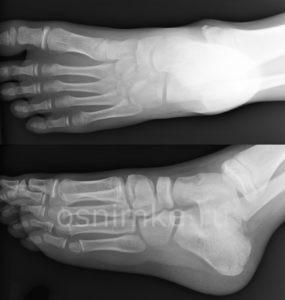 Рентгенография стоп: как проводят диагностику