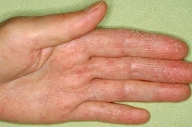 Нейродермит: симптомы и лечение в домашних условиях