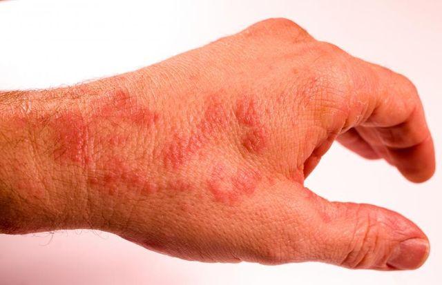 Что представляют собой красные точки на руках