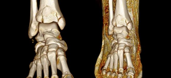 Показания к КТ голеностопного сустава