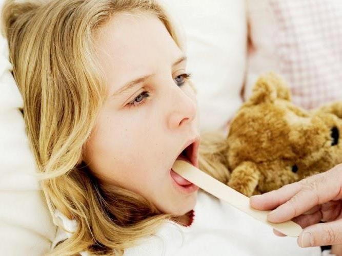 Высокая температура, головная боль и выраженная боль при глотании – классическая «триада» симптомов ангины в подростковом и юношеском возрасте