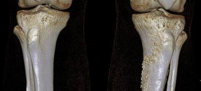 Показания к проведению КТ костей, особенности проведения процедуры