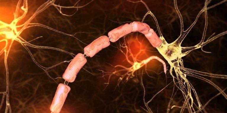 Достоинства МР-диагностики при рассеянном склерозе: с контрастом