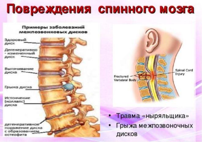 Распространенные повреждения спинного мозга