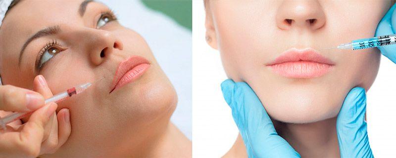 Салонные процедуры от морщин над губой