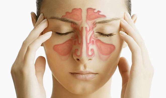 Хронический пансинусит: его виды, симптоматика и лечение