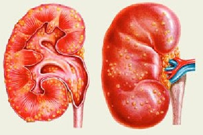 Пиелонефрит симптомы диагностика и лечение