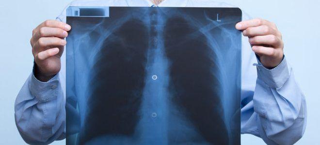 Что может означать затемнение на легких на рентгене