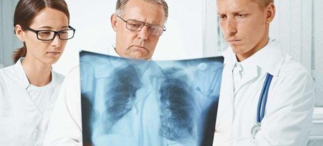 Что безопаснее: Манту или рентген?
