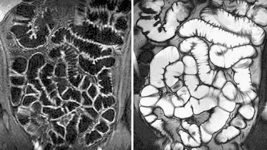 Информативность обследований КТ и МРТ кишечника