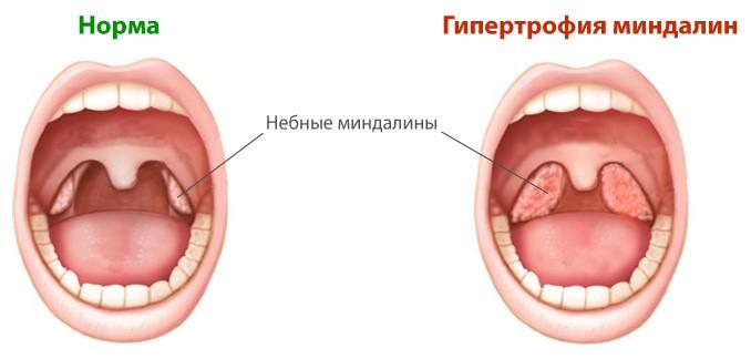 Схематическое изображение глотки при гипертрофии небных миндалин