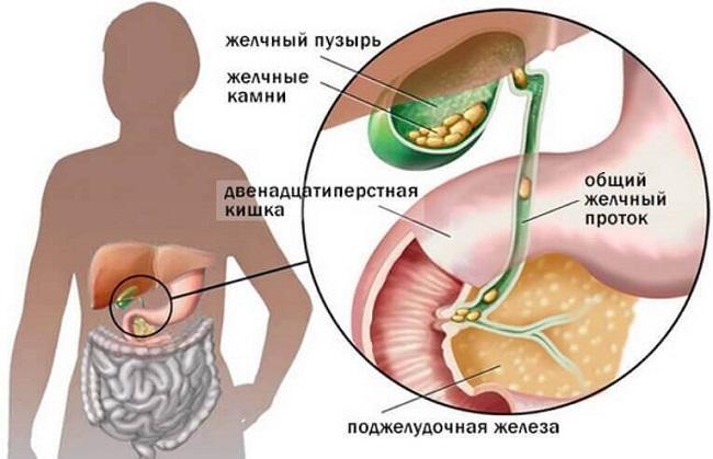Холецистит симптомы и лечение у взрослых