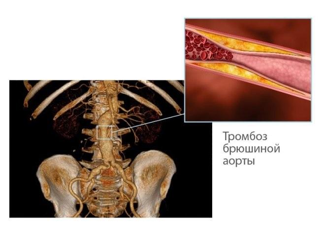 Тромбоз брюшной аорты