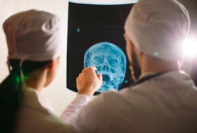 Изучение снимка рентгена носа