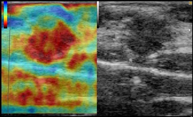 Снимок УЗИ молочных желез с эластографией