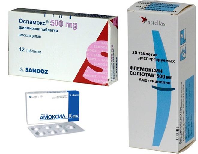 Лечение синусита у взрослых: от таблеток до народных методов
