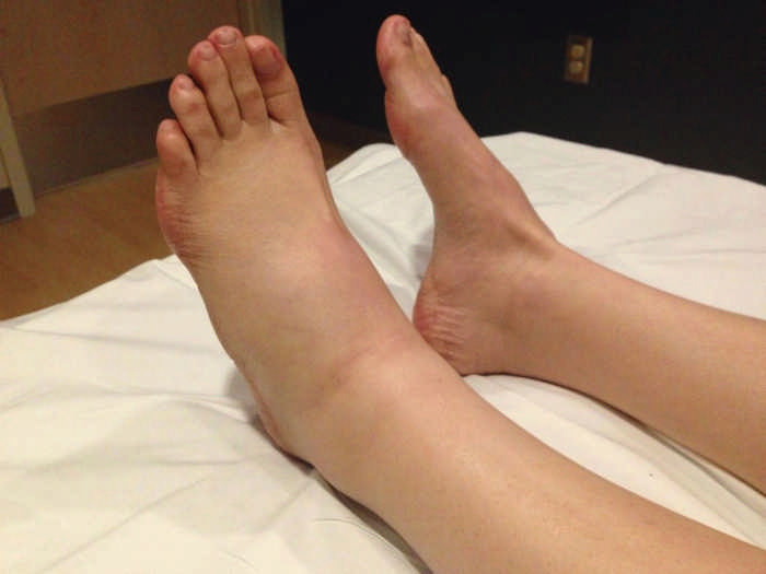 отечность ног причины и как избавиться от отеков на ногах