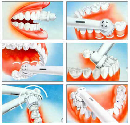 как правильно пользоваться электрической зубной щеткой