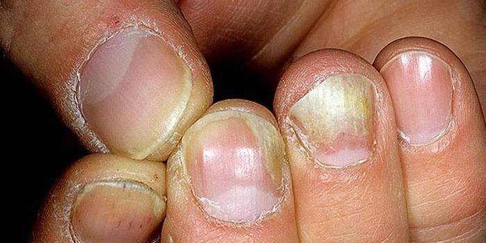 Пораженные грибковой инфекцией ногти рук