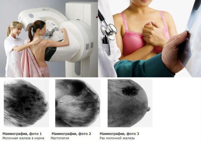 Рак груди на снимке маммографии