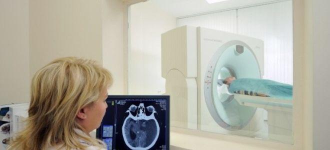Что лучше: МРТ головного мозга или МРТ сосудов головного мозга?