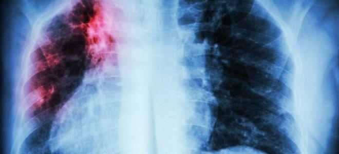 Насколько вредна и сколько действует флюорография на человеческий организм
