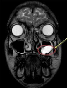 Магнитно-резонансная томография височно-нижнечелюстного сустава: как проходит обследование