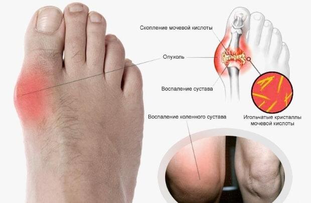 как снять опухоль с ноги способы убрать отечность после ушиба
