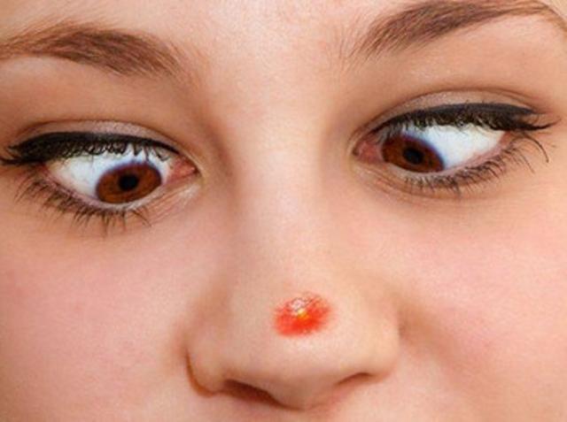 как убрать прыщи с носа способы быстро избавиться от прыща на носу