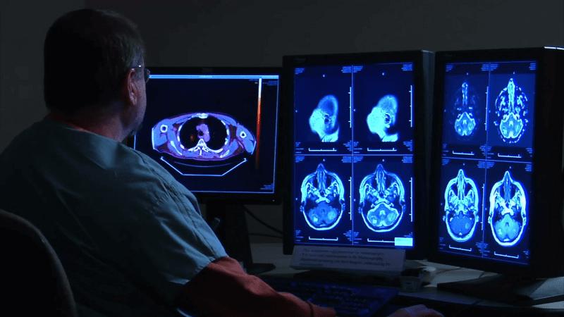 Какой врач занимается флюорографией