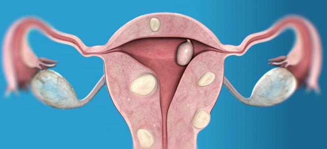 Диагностика миомы матки с помощью УЗИ