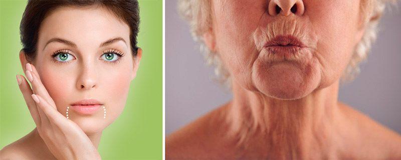 морщины марионетки - как убрать дома и в кабинете косметолога