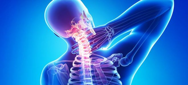 Диагностика остеохондроза при помощи рентгена