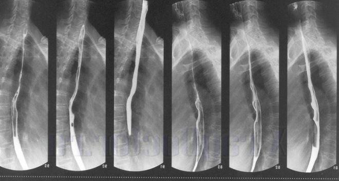 Рентген желудка с барием