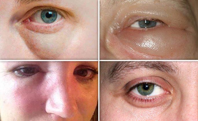 Как убрать мешки под глазами и быстро снять отеки в домашних условиях народными средствами и макияжем