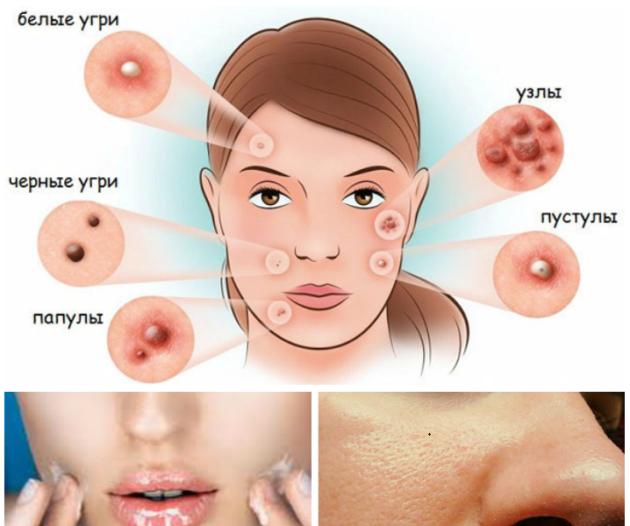 масло для жирной кожи лица эффирное и косметическое